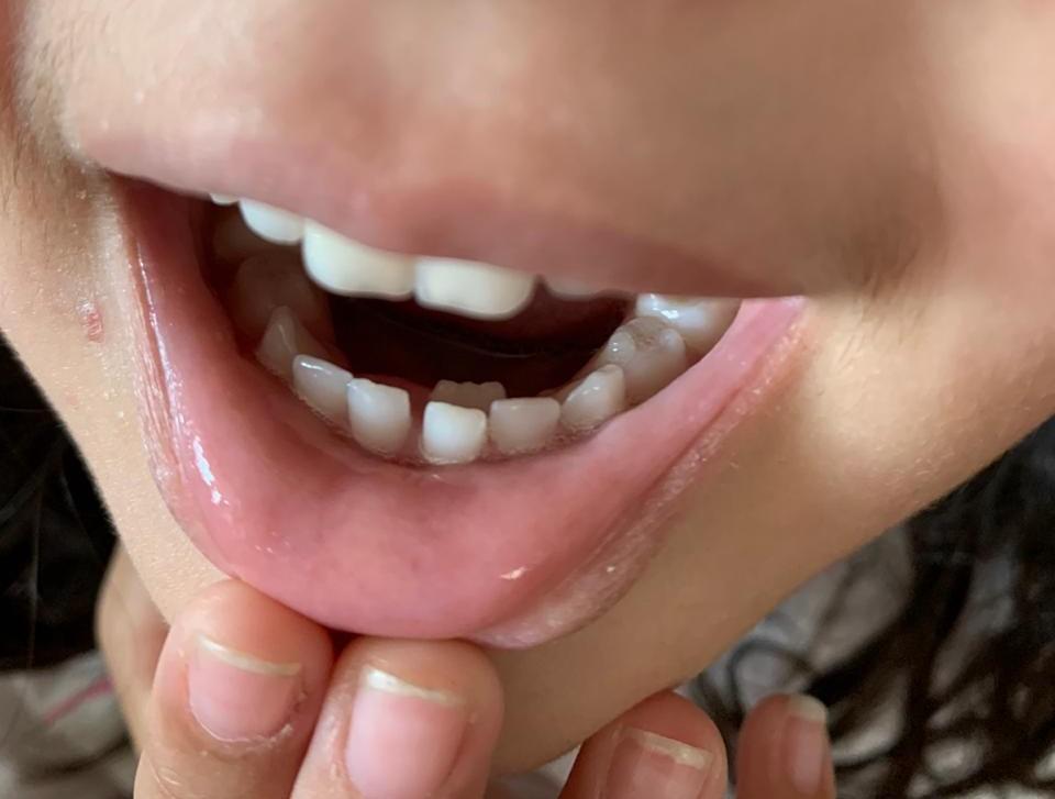 dente permanente nascendo atrás do dente de leite